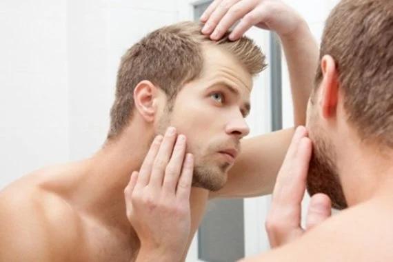 Topical Hair Loss